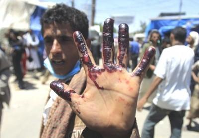 yemen-civil-war