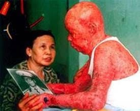 A Vietmnamese victim of Agent Orange, dramatically demonstrating one of the dermatological expressions of the disease.