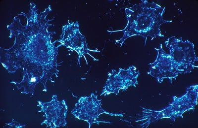"""Das Auftreten von Krebs, ausgelöst durch den """"Impfstoff"""" Covid 19"""